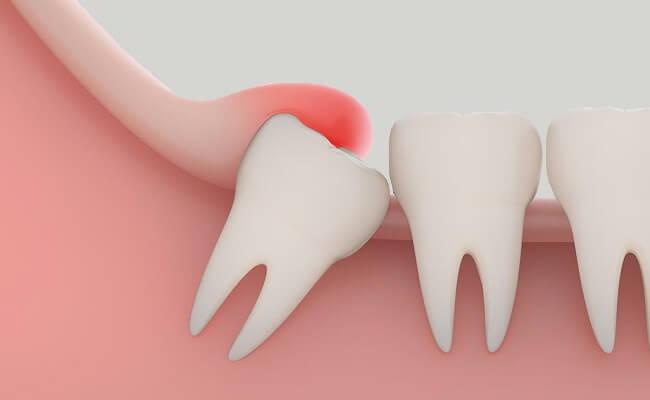Cách chữa viêm lợi trùm răng khôn ngay tại nhà