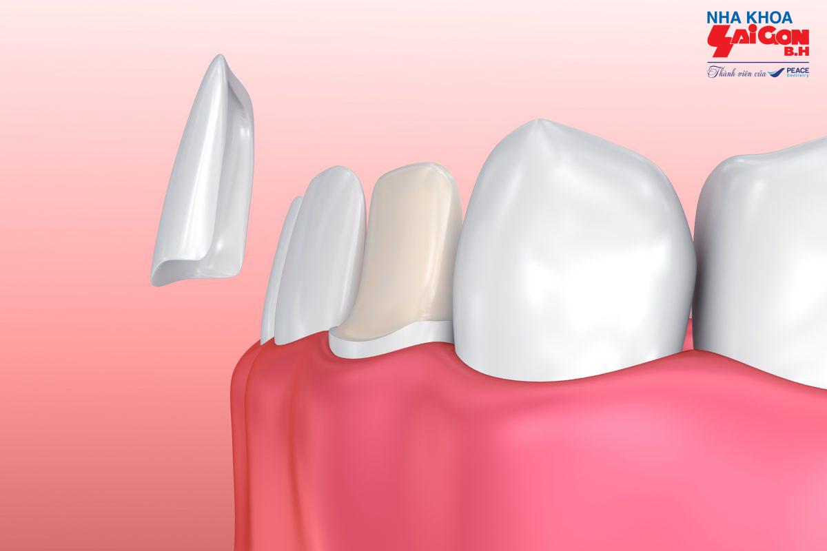Mách bạn dán răng sứ loại nào tốt nhất