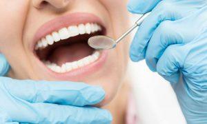 Sự thật về nhổ răng hàm bị ảnh hưởng dây thần kinh mặt và mắt