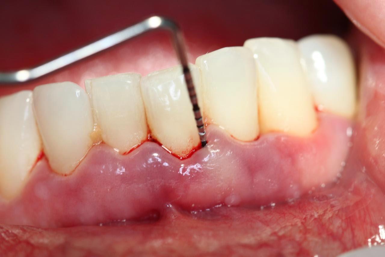 Viêm chân răng chảy máu: Nguyên nhân và cách chữa trị