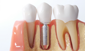 Cấy ghép implant all on 4 là gì? Giá bao nhiêu tiền?