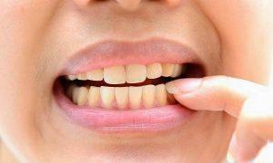 Giải đáp thắc mắc: Răng nhiễm kháng sinh có tẩy được không?