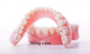 Răng cấm có nên nhổ không? Cần làm gì sau khi nhổ răng cấm?