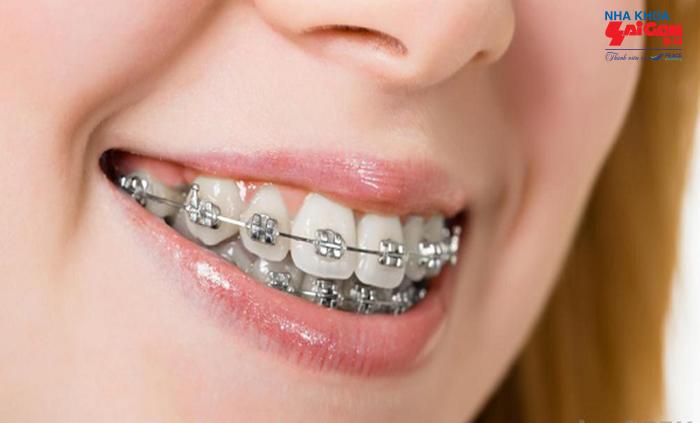 Thời gian niềng răng hô khoảng bao lâu sẽ có kết quả?