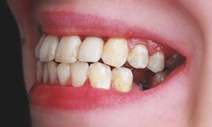 Tìm hiểu: Viêm chân răng gây hôi miệng và cách chữa trị