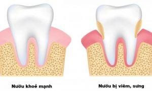 Dấu hiệu viêm chân răng là gì? Địa chỉ chữa viêm chân răng uy tín