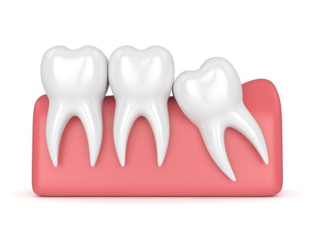 Răng số 8 là răng gì và khi nào nên nhổ răng khôn?