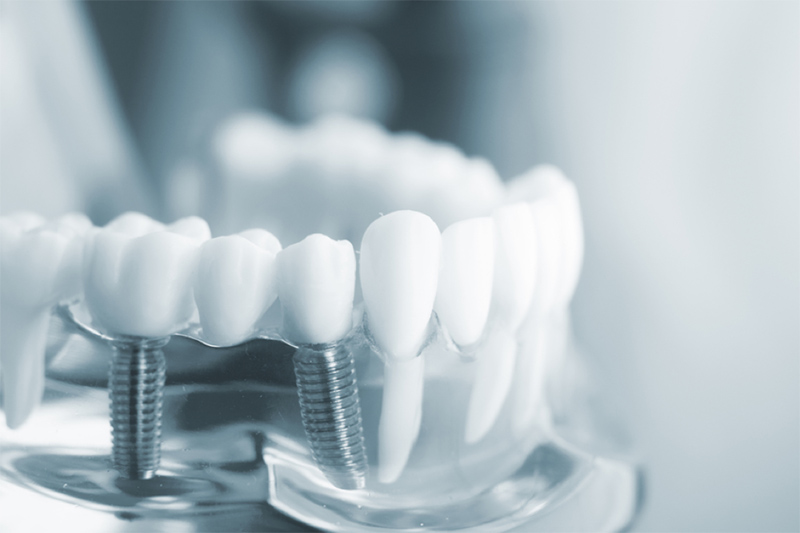 Chi tiết bảng giá cầu răng sứ cho những ai cần