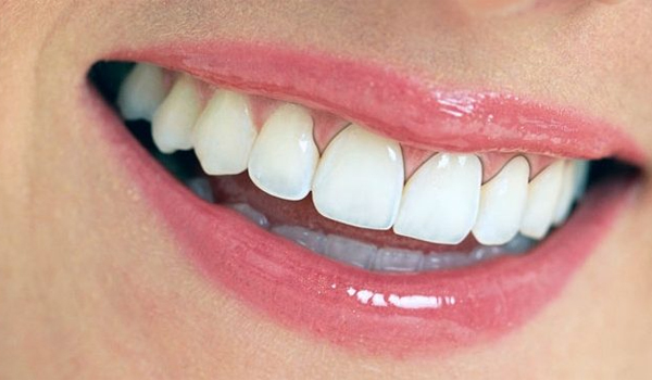 Dấu hiệu và cách điều trị bọc răng sứ bị viêm lợi