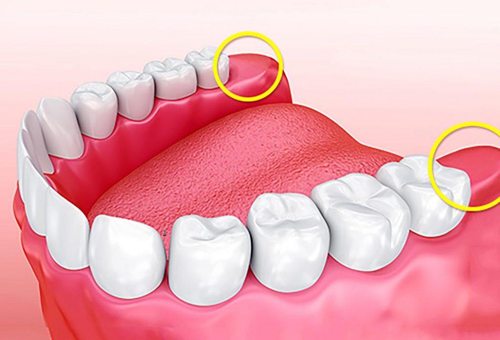 Mọc răng khôn đau mấy ngày, có nên nhổ không?