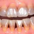 răng bị nhiễm màu tetra nặng không thẻ tẩy trắng