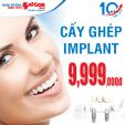 Trồng răng implant chỉ với 9,999.000đ