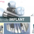 5 yếu tố ảnh hưởng đến kết quả cấy ghép implant