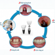 Cách nhận biết nơi cấy ghép implant tốt nhất tại Biên Hòa?