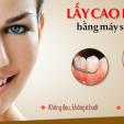 Lấy cao răng bằng sóng siêu âm không đau