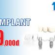 Cấy ghép implant trọn gói chỉ với 9,999,000 VNĐ