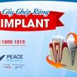Trồng răng implant giải pháp tái tạo răng hoàn hảo
