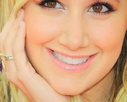 tẩy trắng răng mang lại nụ cười rạng ngời trên môi