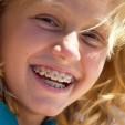 Có đau khi chỉnh nha niềng răng thưa không?