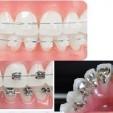 Các loại mắc cài trong niềng răng