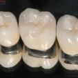 Bọc răng sứ bằng titan có tốt hay không?