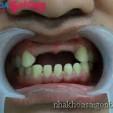 Trồng răng giả khi mất răng