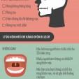 Răng khôn mọc lệch - khi nào nên nhổ