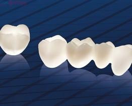 Có nên bọc răng sứ thẩm mỹ không?