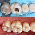 răng sữa bị sâu có nên trám lại không