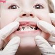 Bệnh sâu răng