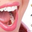 sở hữu ngay chiếc răng sinh đá trong 15 phút