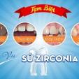 Hết thưa, gãy vỡ, sỉn màu và khấp khểnh với răng sứ Zirconia
