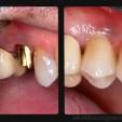 tại sao phải chọn răng implant thay thế răng giả