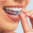 tẩy trắng răng với máng tẩy tại nhà