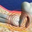 Tiểu phẫu nhổ răng khôn mọc ngầm có nguy hiểm không