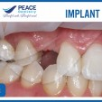 hình ảnh trước khi điều trị implant