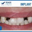 hình ảnh trước khi trồng răng implant