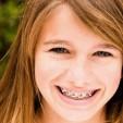 Những vật dụng cần thiết để chăm sóc răng miệng khi niềng răng